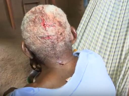 Aposentado é brutalmente espancado por ladrões na zona rural do MA