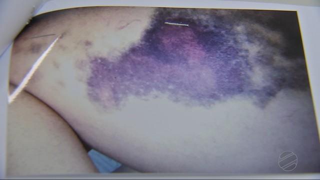 Vítima exibe hematomas após agressões (Crédito: V Centro América)