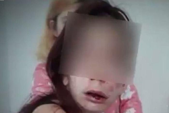 Jovem deficiente é agredida e tem mãos queimadas por adolescentes
