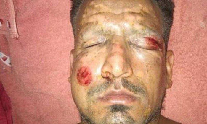 Lucas Viatri ficou com o rosto bastante inchado e com marcas de queimaduras (Crédito: Reprodução)