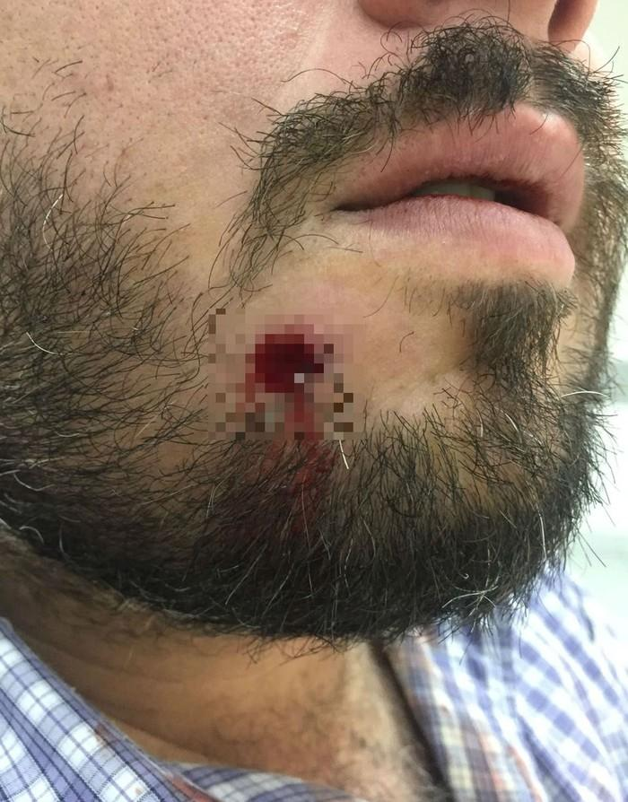 Turista foi baleado no rosto e sobreviveu após bala ficar alojada na boca em Guarujá, SP (Crédito: Arquivo Pessoal)