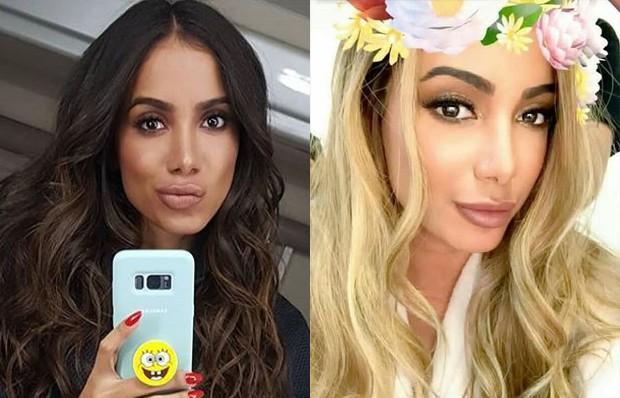 Anitta muda o visual e surpreende fãs em rede social