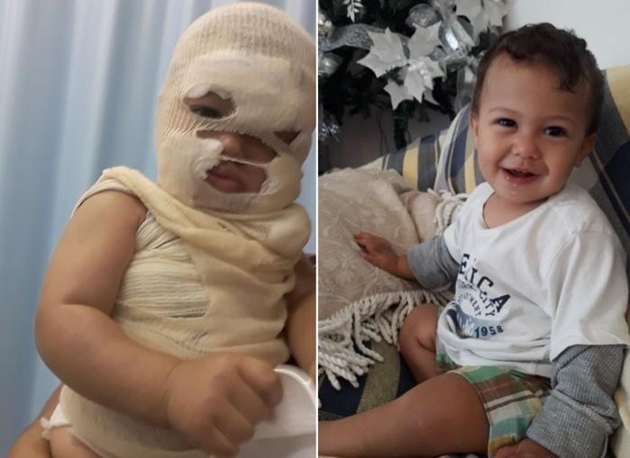 Bebê tem rosto desfigurado por água fervendo e pais fazem apelo