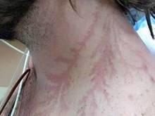 Fotos revelam marcas deixadas na pele de quem foi atingido por raio