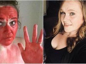 Filha passa batom no rosto da mãe que fica 2 dias com cara pintada