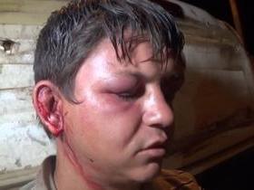 Acusado de assalto sofre tentativa de linchamento na zona Sul