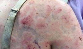 Mulher se fere ao usar o corpo para proteger filha de granizo