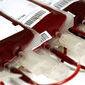 """""""Plástica interna"""" usa sangue de jovens para rejuvenescer"""