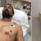 Homem dirige até hospital com prego fincado no coração
