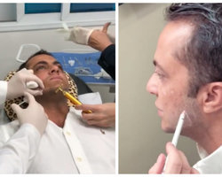 "Thammy faz procedimento para aumentar o maxilar: ""vou mudar"""