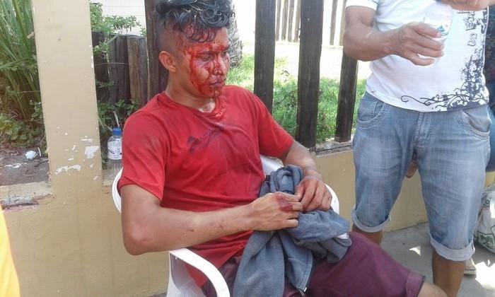 Estudante foi assaltado e levou pedrada quando ia fazer prova do Enem 2018, em Macapá (Crédito: Wedson Castro/Rede Amazônica )