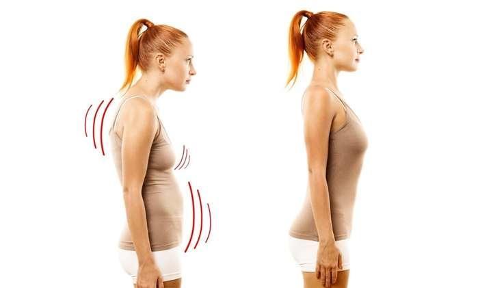 5 problemas que a má postura pode trazer para sua vida