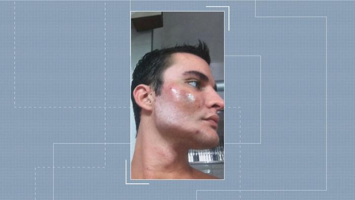 Outro ângulo que mostra efeito da bioplastia (Crédito: Reprodução/TV Globo)