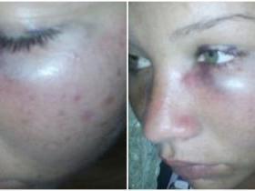 Homem é acusado de espancar a ex-mulher e a própria mãe, no Piauí