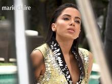 Anitta revela correção no nariz após plástica: 'Ficaram malfeitas'