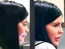 Lábios 'supervolumosos' de Kylie Jenner voltam a chamar atenção
