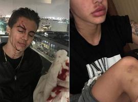 Biel leva 13 pontos na testa após agredir mulher nos Estados Unidos