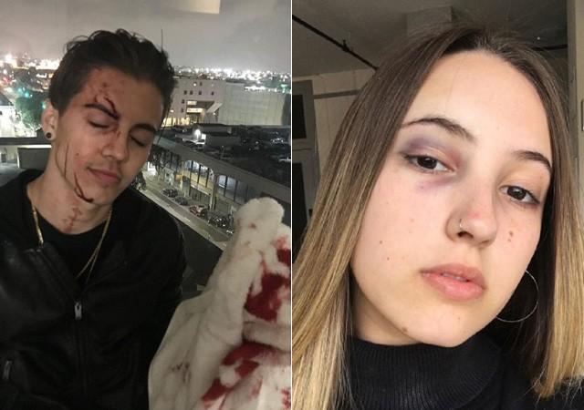 Biel e sua irmã Giovanna mostram hematomas  (Crédito: Reprodução/Instagram)