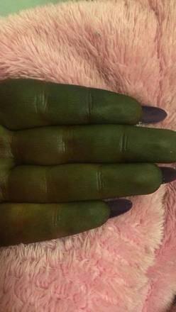 Resultado de imagem para Mulher fica com cor do Shrek após bronzeamento artificial