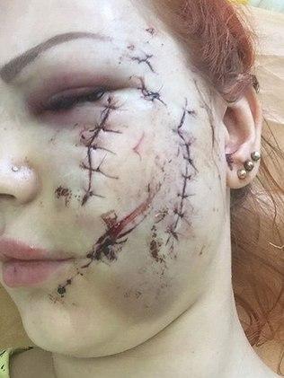 Mulher ficou com rosto cortado (Crédito: Irina Malysheva)