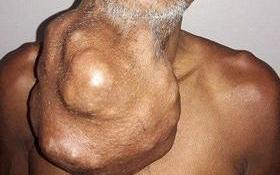Indiano confude tumor com inchaço e quase morre; imagem choca!