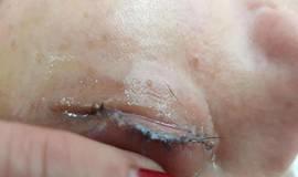 Mulher sofre por horas após colar cílios postiços com supercola