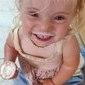 Menina tem doença que afeta apenas uma em 820 bilhões de pessoas