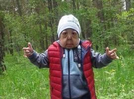 Síndrome rara faz menino de apenas 6 anos ter cara de idoso; fotos