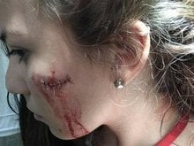 Mulher é esfaqueada durante tentativa de assalto em estação de BRT