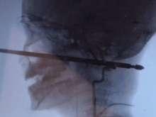 Criança sobrevive após espeto de churrasco atravessar sua cabeça