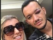 Mulher de Réver publica foto do zagueiro com olho inchado