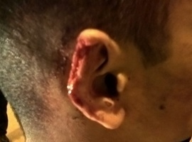 """Homem quase arranca orelha de jovem que """"olhou"""" seu pênis"""