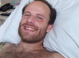 Vitor Morosini aparece pela 1ª vez após cair do 5º andar de hotel