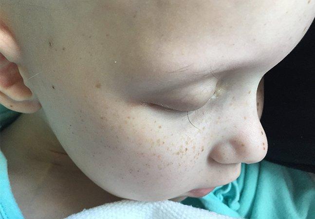 Pai registra o último cílio da filha com câncer e comove a web