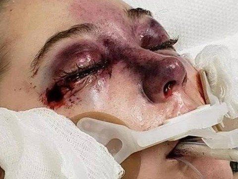 Adolescente 'chora sangue' após contrair doença durante cruzeiro