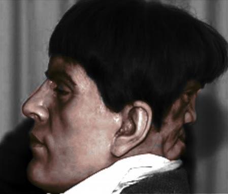 Edward Mordake: conheça a história do homem de duas cabeças