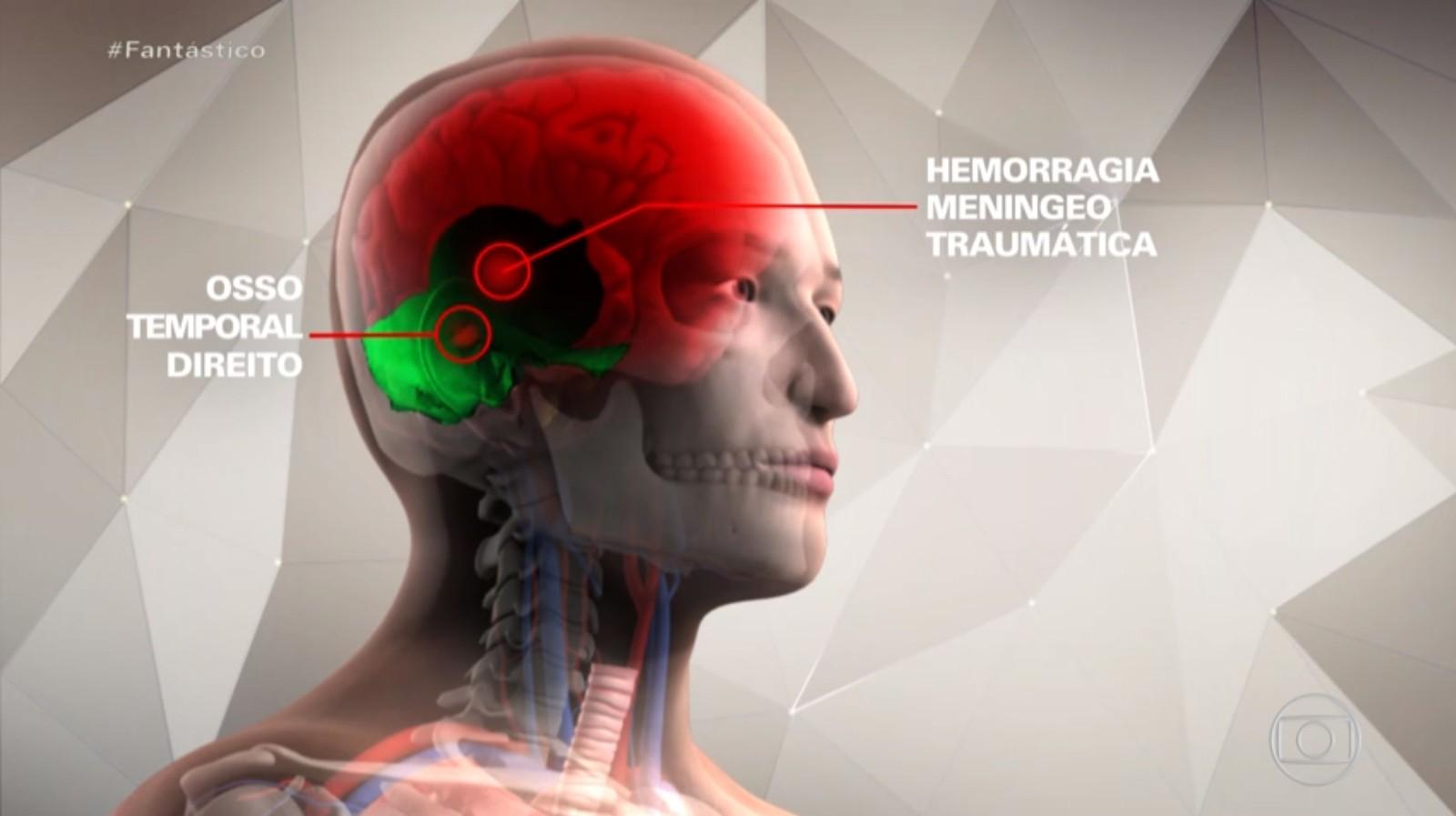 Gugu teve fratura e hemorragia se espalhou para cérebro após queda - Imagem 3