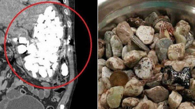 2 quilos de pedras, moedas e tampas é retirado do estômago de paciente