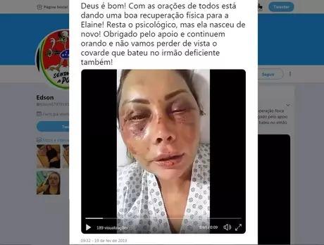 Empresária aparece com o rosto inchado e ferido em vídeo postado no Twitter