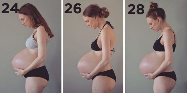 Veja o que acontece com o corpo de uma mulher grávida de trigêmeos - Imagem 3