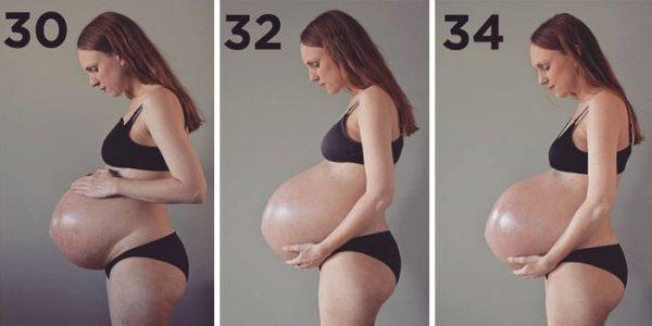 Veja o que acontece com o corpo de uma mulher grávida de trigêmeos - Imagem 5