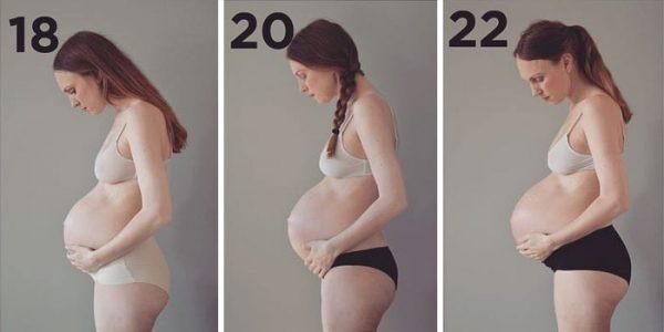 Veja o que acontece com o corpo de uma mulher grávida de trigêmeos - Imagem 2