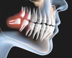 Dentistas vão falar sobre o dente do siso