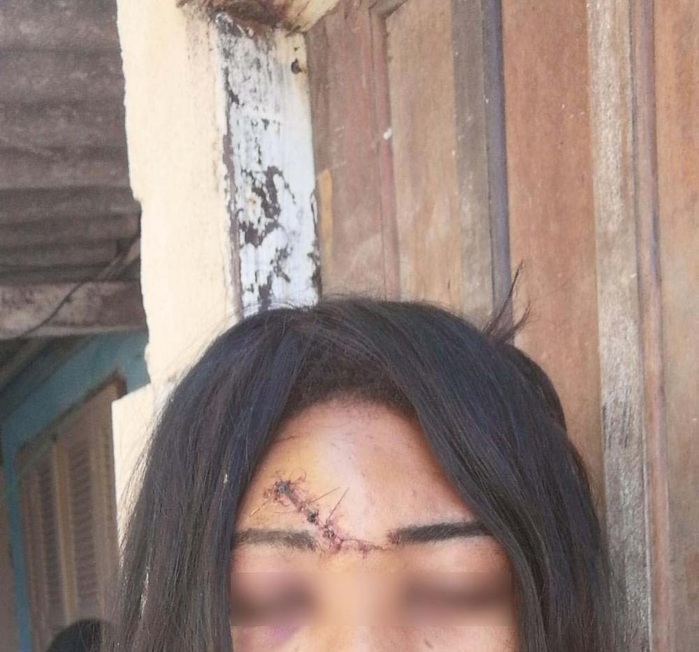 Trans é agredida e fica ferida após rejeitar sexo com estranho em SP - Imagem 1