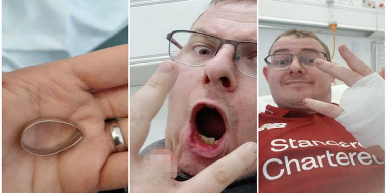 Recém-casado perde o dedo inteiro após aliança agarrar em cerca