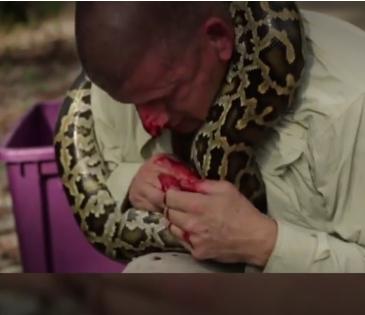 Homem provoca cobra píton e é picado no rosto; assista ao vídeo - Imagem 5