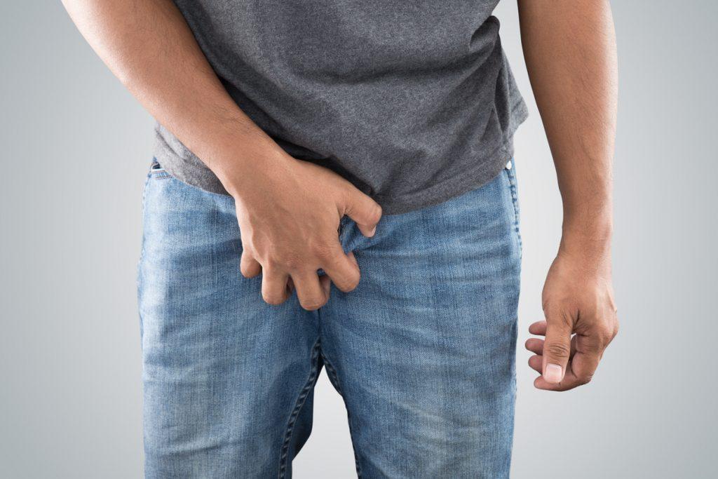 Varicocele: as varizes no saco escrotal não podem ser ignoradas  - Imagem 1