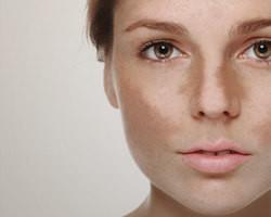 Dermatologista fala sobre melasma