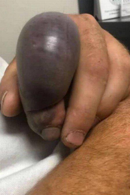 """Jardineiro fica com """"balão de sangue"""" após ser picado por cobra  - Imagem 1"""
