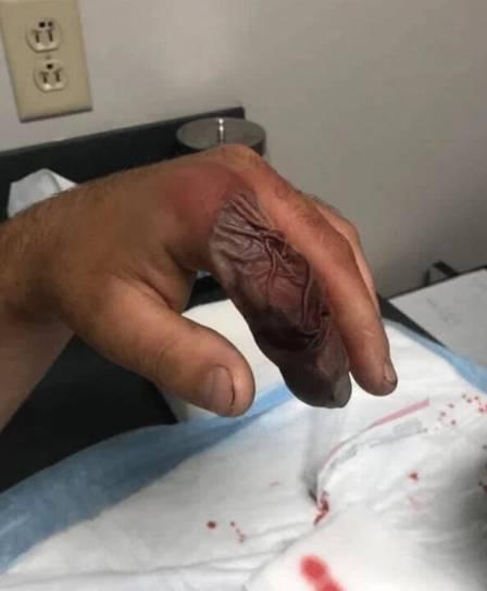 """Jardineiro fica com """"balão de sangue"""" após ser picado por cobra  - Imagem 2"""